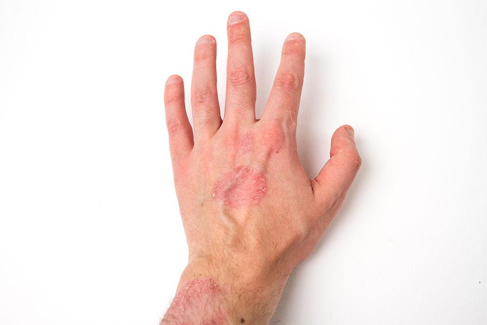 hand ekzem salbe